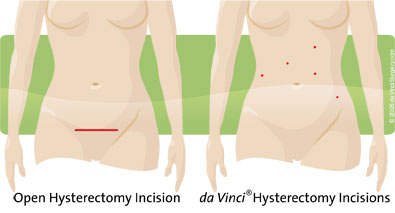 Traditional Open Hysterectomy Incision vs da Vinci® Hysteredomy Incisions